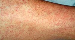 Sắp có vaccin ngăn ngừa sốt xuất huyết